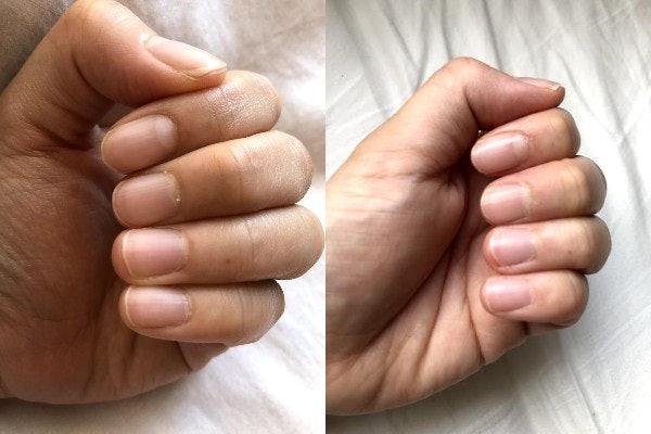 1週間では肌の変化は見られなかった。でも爪にツヤが出てきたかも!