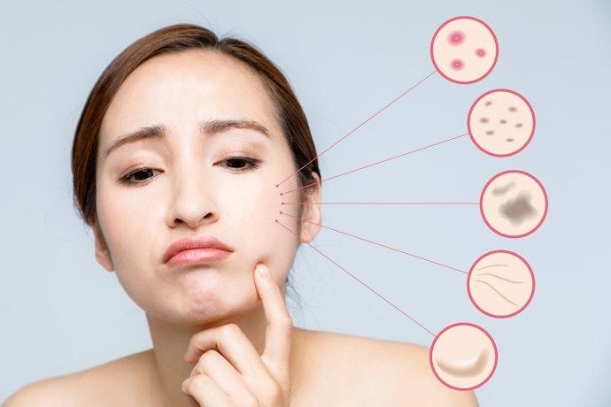 肌荒れに対する口コミ