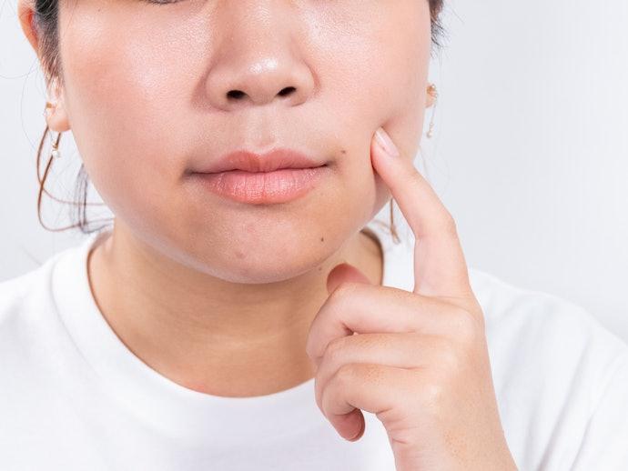 口コミ③:毛穴が目立つ