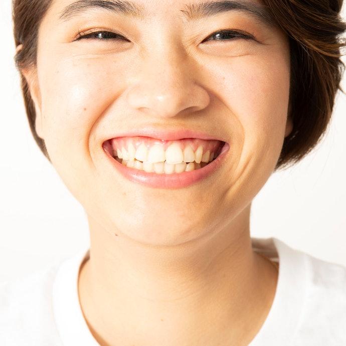 【効果に対する口コミ】即効性がなく、なかなか歯が白くならない…
