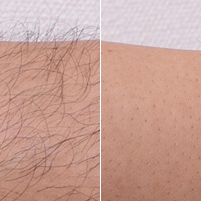 細かい毛は取れず、黒ずみが残る