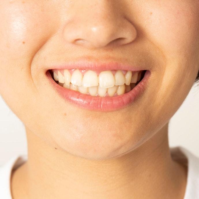 トラブルも副作用もなし。歯茎にしみるなどの症状も起こらなかった。