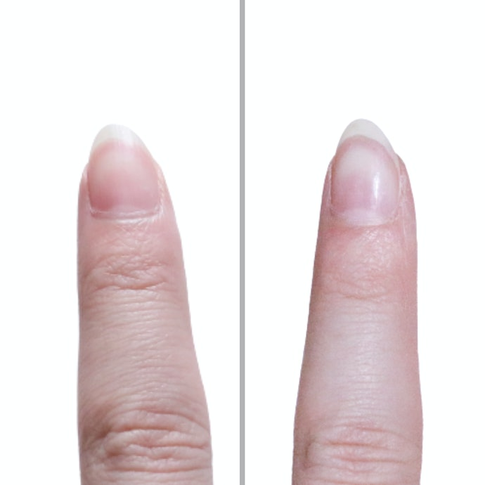 薄皮を残さず、爪表面はツルツルピカピカ