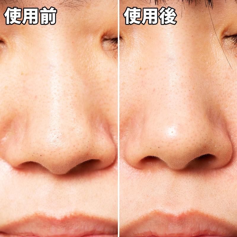 取る 角質 鼻 の