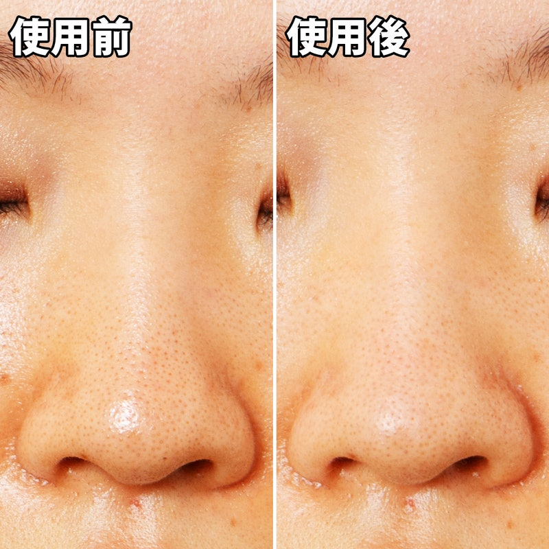 鼻 おすすめ いちご もういちご鼻にさようなら! もっとも効き目のある5つの治し方