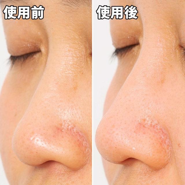 毛穴 鼻 の 毛穴の角栓には意外と知らない原因が? 簡単ケアで正しく除去!