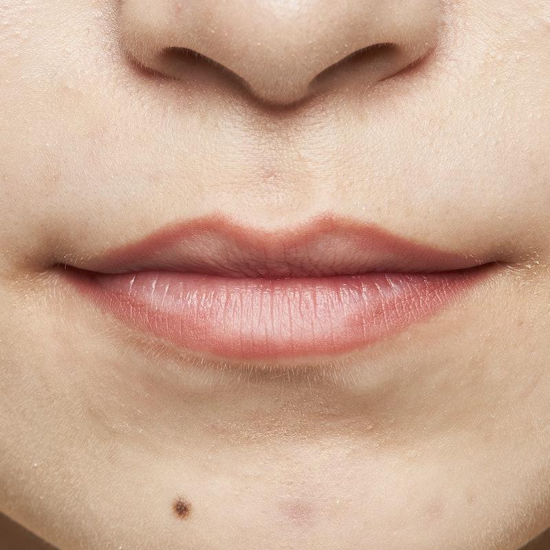 かゆい が 唇 ふち の